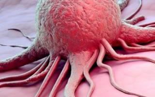 Молитва рак желудка